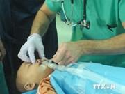 越南中部三省150名唇腭裂儿童获免费手术